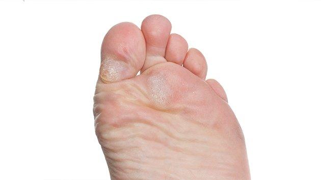 traitement engelure pied